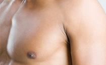 Ginecomastia (Cirurgia do peitoral)